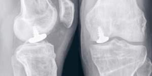 Abb. 3. Röntgenbild eines nur an der mittleren Gelenkrolle eingebrachtes Mini-Implantat